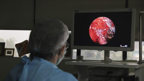 Индийский врач выполняет расширенную функциональную эндоскопическую операцию на носовых пазухах человеку, страдающему мукормикозом, в больнице на окраине Нью-Дели, Индия - Sputnik Česká republika