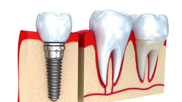 Zubní implantát - Sputnik Česká republika