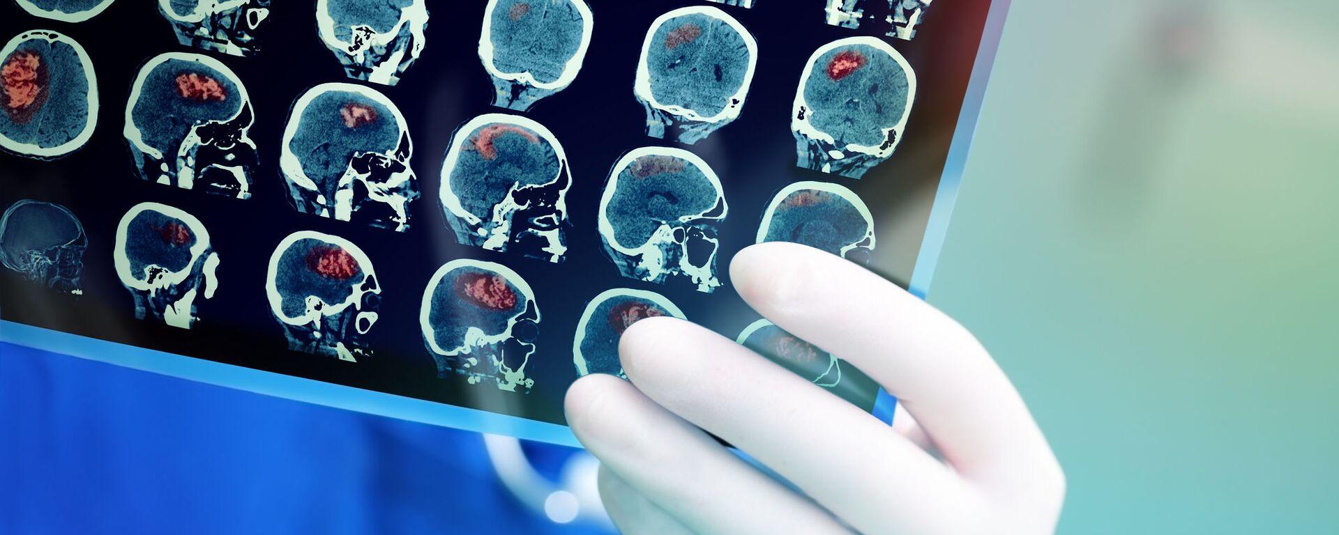 Snímek magnetické rezonance mozku pacienta - Sputnik Česká republika, 1920, 02.02.2021
