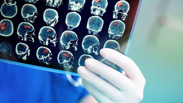 Snímek magnetické rezonance mozku pacienta - Sputnik Česká republika