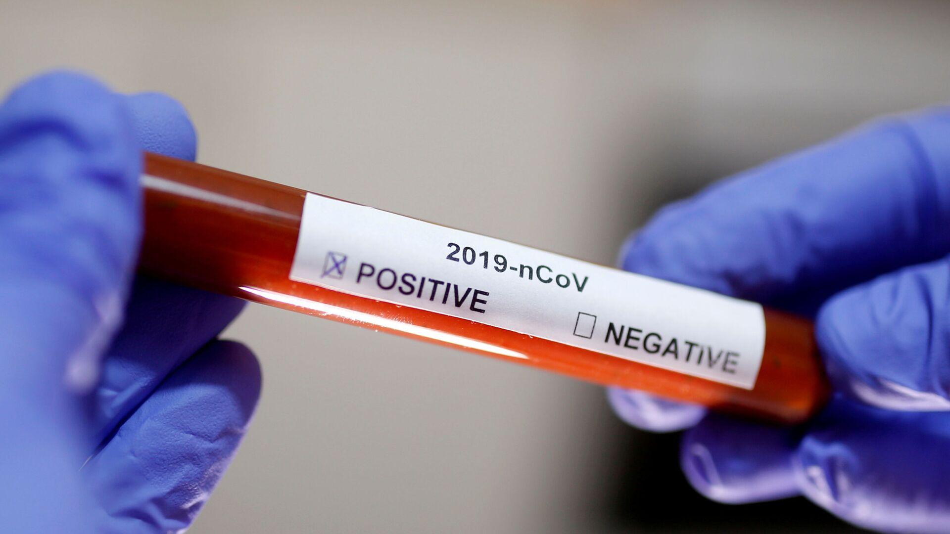 Test na koronavirus SARS-CoV-2 - Sputnik Česká republika, 1920, 20.09.2021