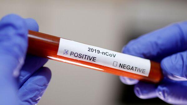 Test na koronavirus SARS-CoV-2 - Sputnik Česká republika