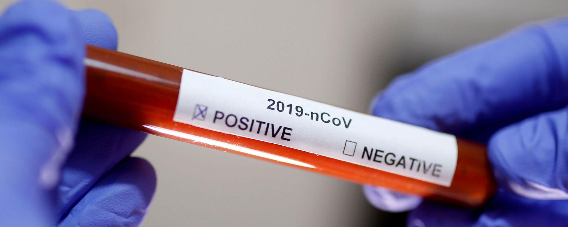 Test na koronavirus SARS-CoV-2 - Sputnik Česká republika, 1920, 26.02.2021