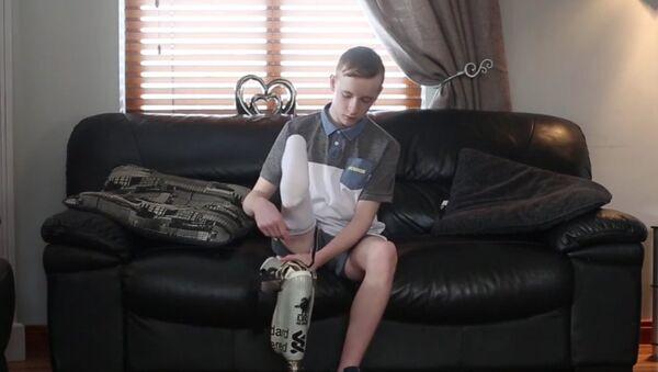 V Severním Irsku chlapci přišili nohu obráceně. Video - Sputnik Česká republika