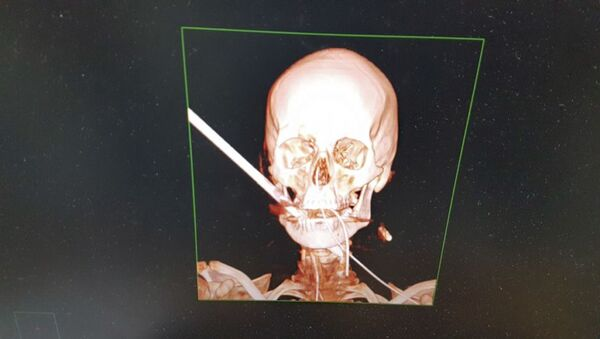 Snímek izraelského muže, kterému obličej prorazila střela - Sputnik Česká republika