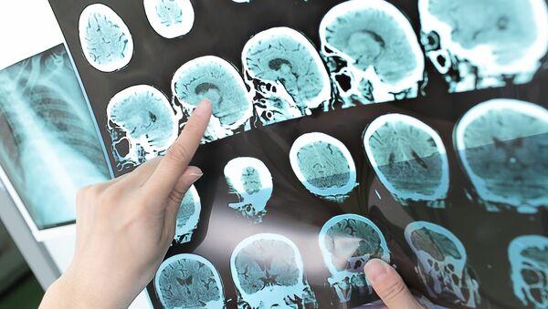 Снимок компьютерной томографии человеческой головы - Sputnik Česká republika